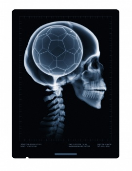 X ray scull with football brain skeleton skelett skalle med fotboll tänder nacke tand ben